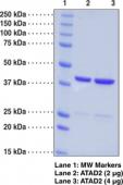 ATAD2 bromodomain (human recombinant)