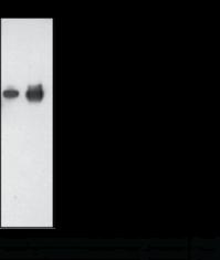 PCSK9 (human) Monoclonal Antibody (Clone 15A6)