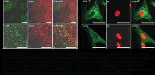 Prostaglandin I Synthase Monoclonal Antibody (Clone 3C8)