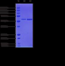 Soluble Epoxide Hydrolase (human recombinant)