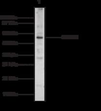 SMAD4 Polyclonal Antibody