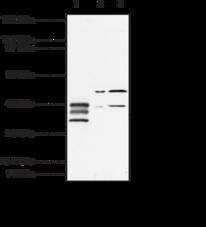 EP<sub>1</sub> Receptor Polyclonal Antibody