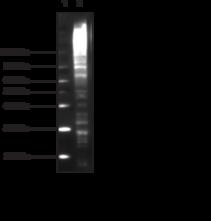 Multi<wbr/>ubiquitin Chain Monoclonal Antibody (Clone FK2)
