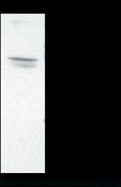 EP<sub>2</sub> Receptor Polyclonal Antibody