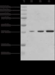 JMJD2A (human, recombinant)