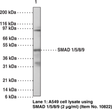 SMAD1/5/8/9 Polyclonal Antibody