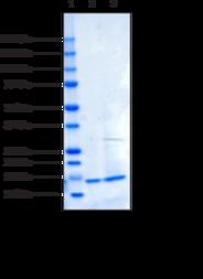 Irisin (human recombinant)