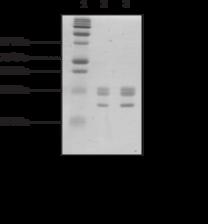 Core Histones (human)