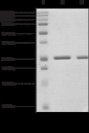 CBX5 (human recombinant)