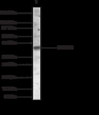 SMAD6 Polyclonal Antibody