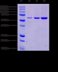 PTEN (human recombinant)
