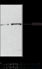 JMJD2A Polyclonal Antibody