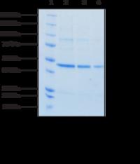 Sphingosine Kinase 1 (human recombinant)