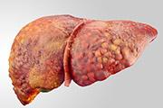 Did you know metabolic Disorder Bertin Bioreagent