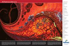 Atherosclerosis Poster Cayman Chemical Bertin Bioreagent